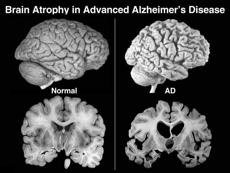 Атрофия мозга при болезни Альцгеймера
