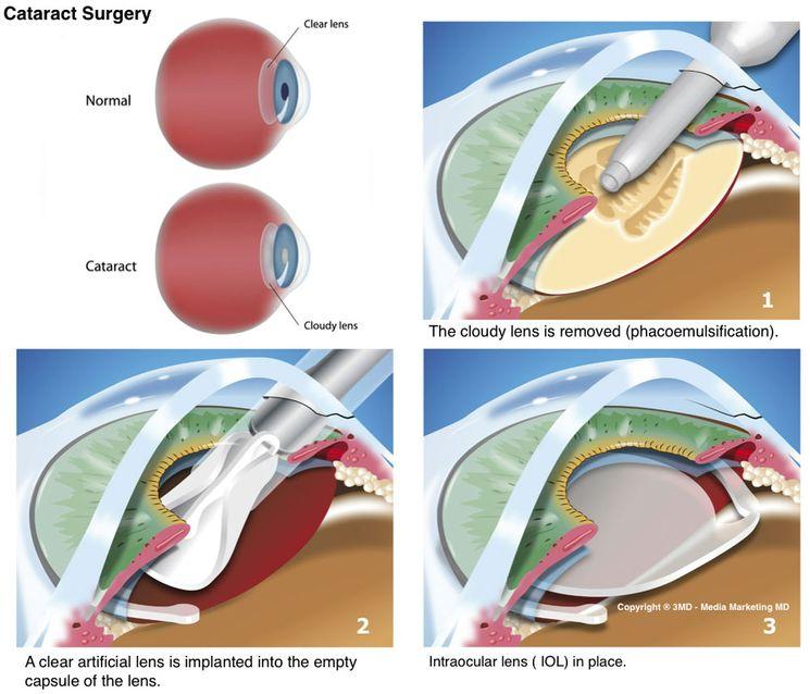 Операция по удалению катаракты глаза
