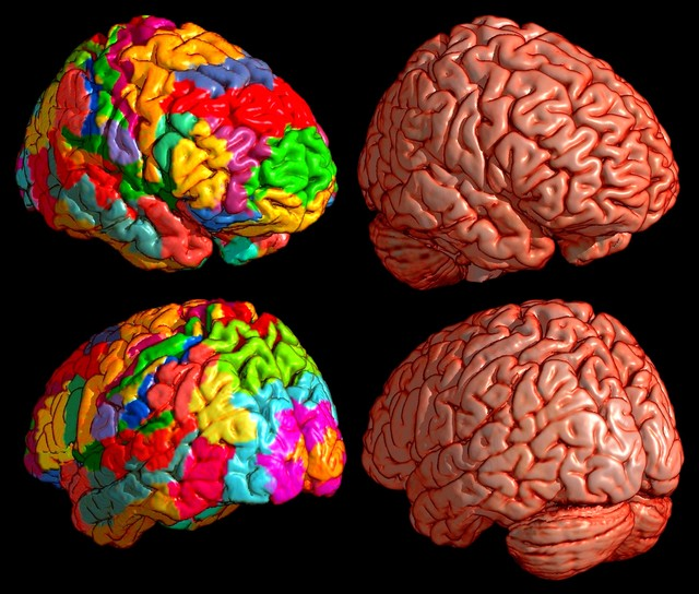 3d модели мозга человека