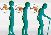 Изменения позвоночника при остеопорозе