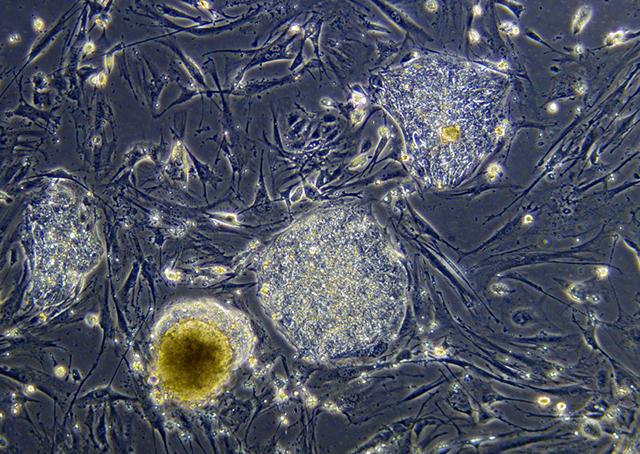 Стволовая клетка