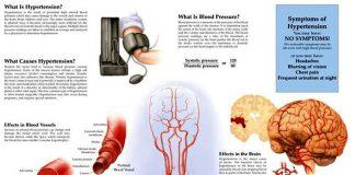 Лечение гипертонии