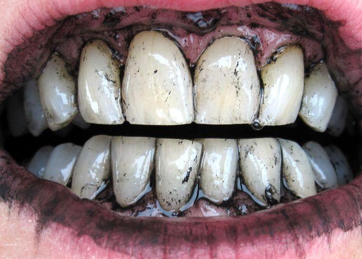 Отбеливание зубов углём
