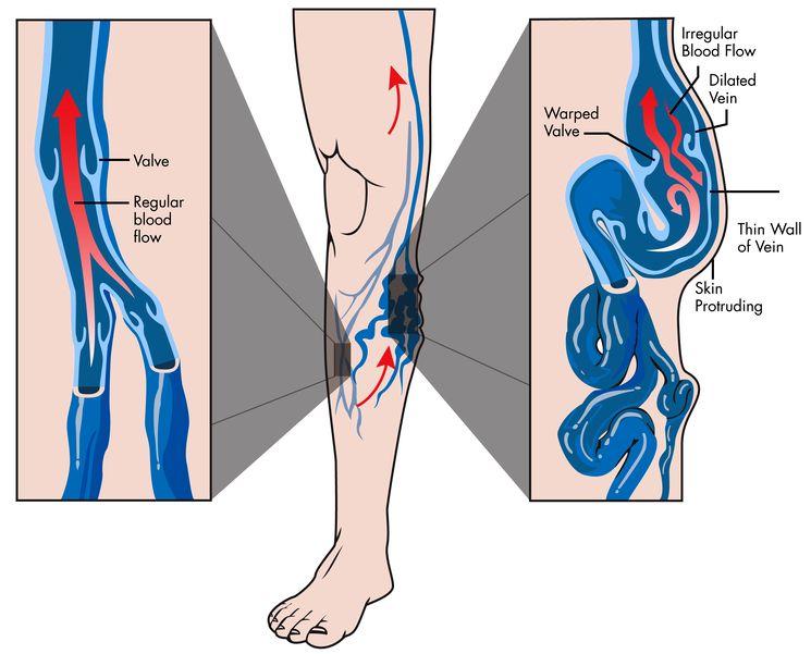 Как лечить воспаление кожи при варикозе