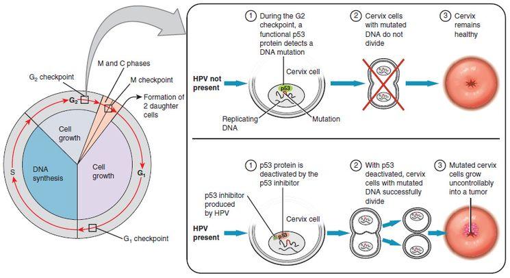 Рак шейки матки, вызванный папилломавирусом