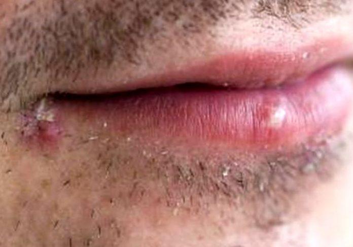 """Герпес - симптомы, диагностика и лечение """"простуды на губах"""" Science Debate"""