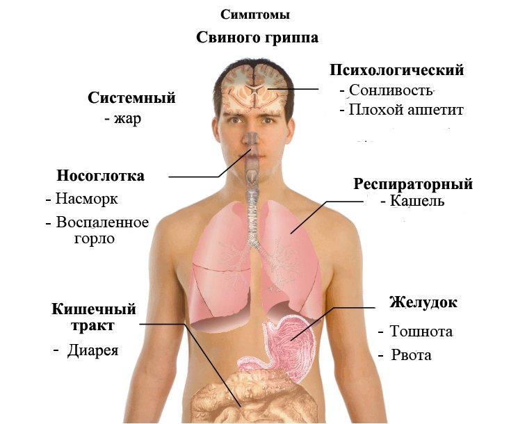 Симптомы свиного гриппа у человека