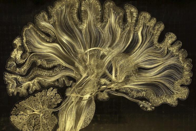 Снимки мозга методом электронного микротравление при белых лучах