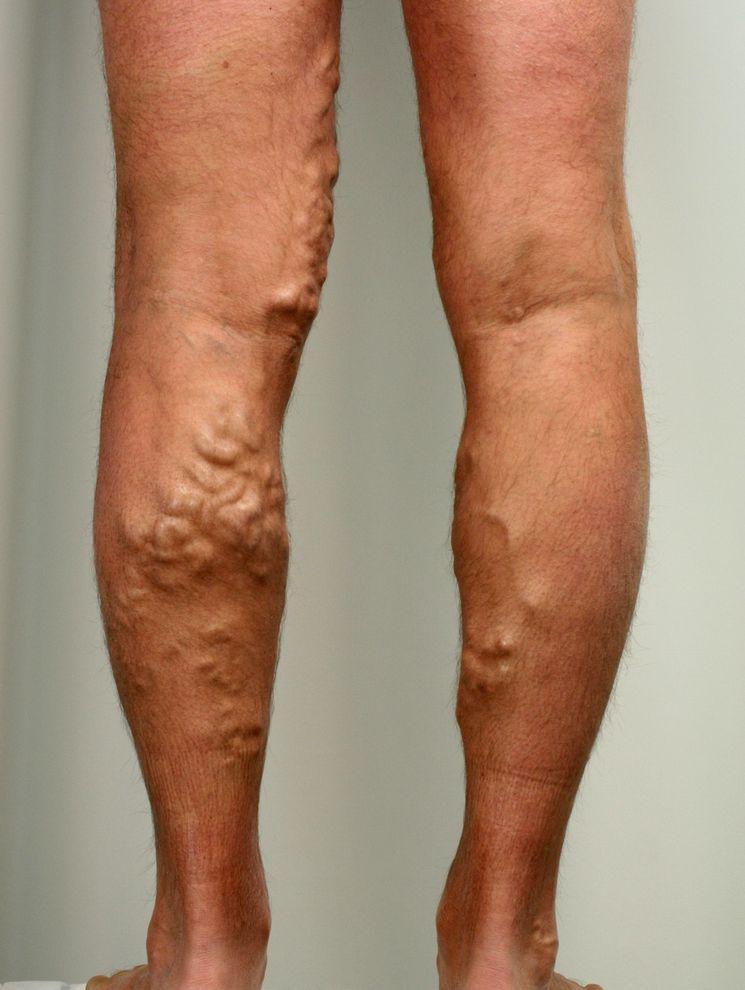 Чем лечить варикоз ступней