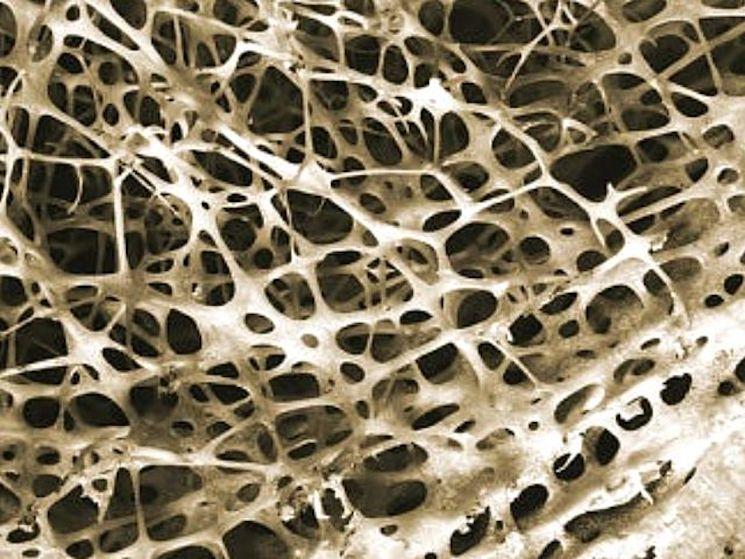 Внутрення стуктура кости голени