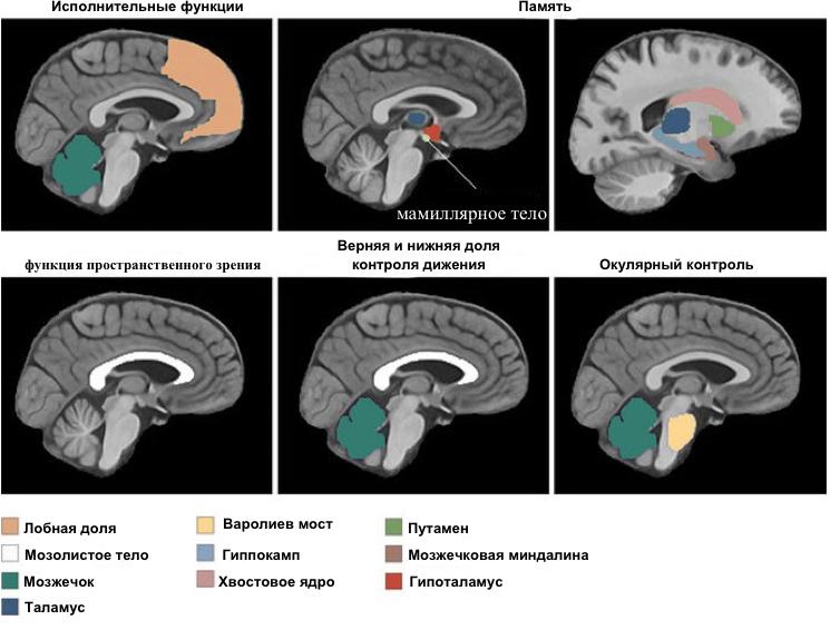 Зоны головного мозга под воздействием алкоголя