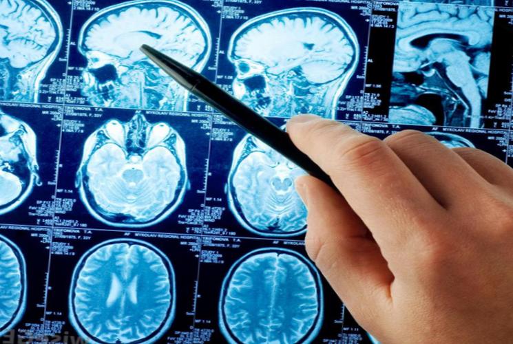 Инсульт головного мозга - одна из опаснейших патологий