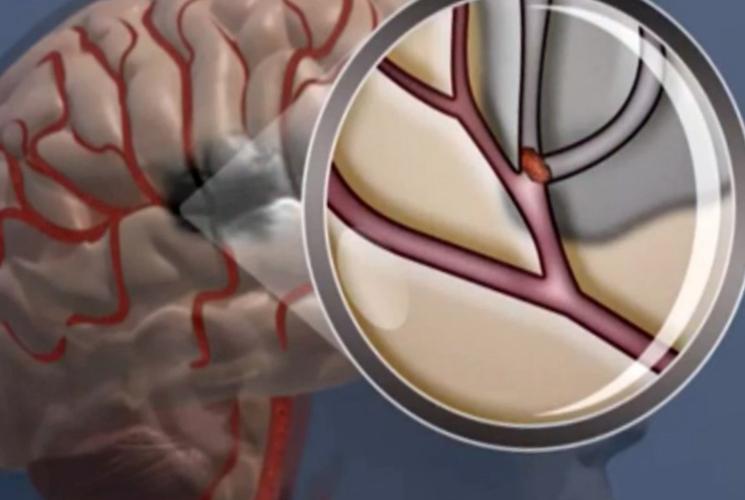 признаки инсульта и микроинсульта - классификация по степени поражения