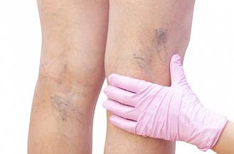 Лікування варикозу: основні методики та особливості