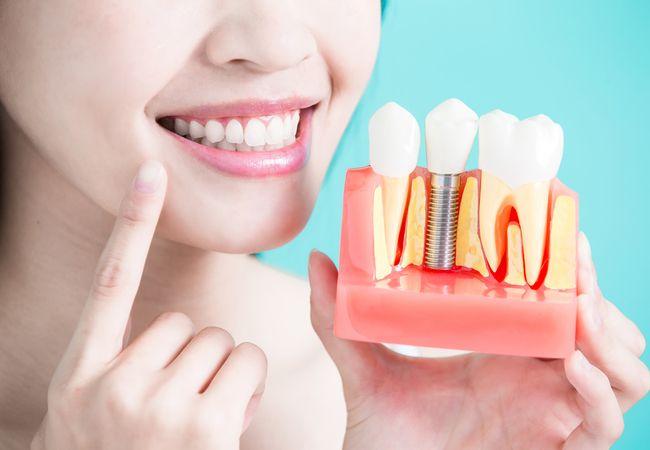 Имплантация зубов. Установка имплантата — надежная опора на долгие годы
