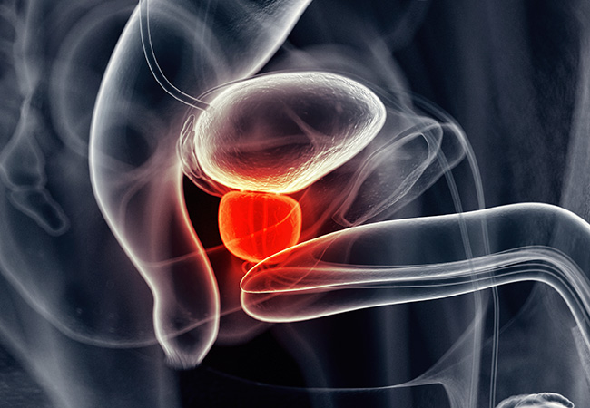 650x450-prostate-cancer-guidelines.jpg