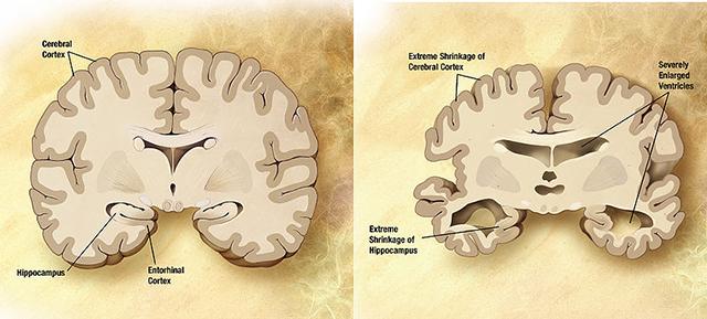 Мозг пожилого человека
