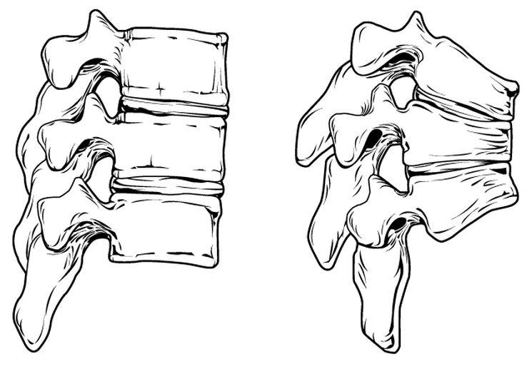 Атрофия костей