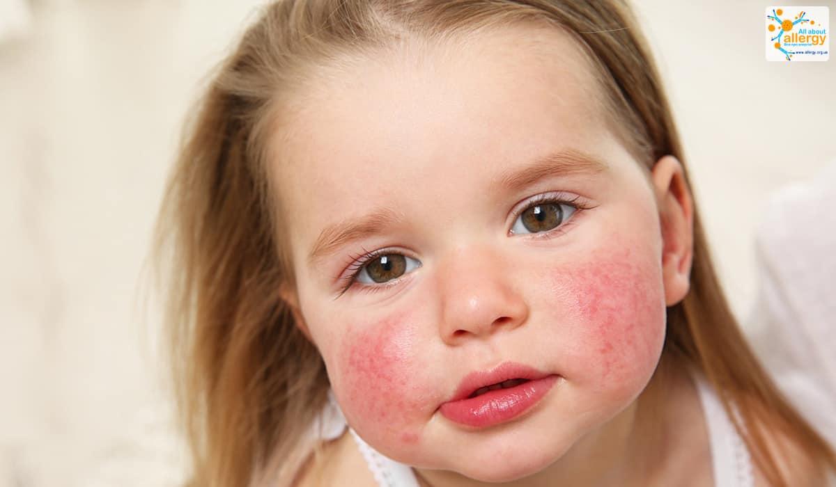 Почему важно сделать пробу на аллергию и как проходит процедура