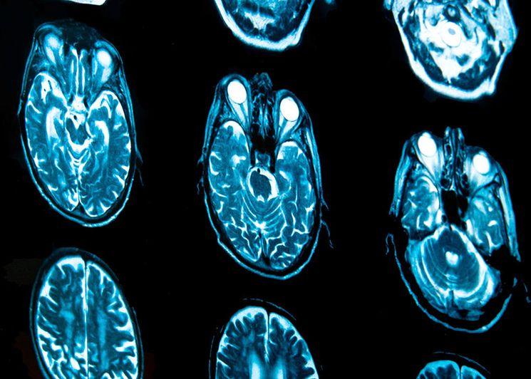 Томография (МРТ) головного мозга