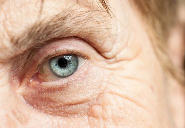 cataract-650x450.jpg