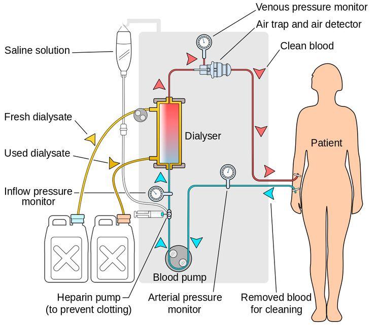 Что такое гемодиализ почек