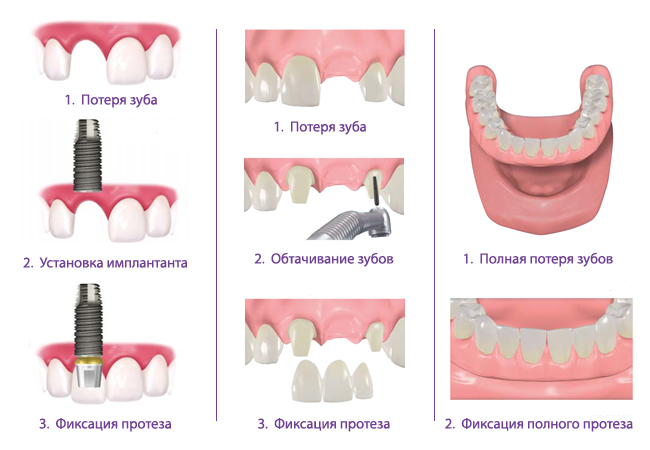 Самые доступные импланты зубов в СПб по низкой цене