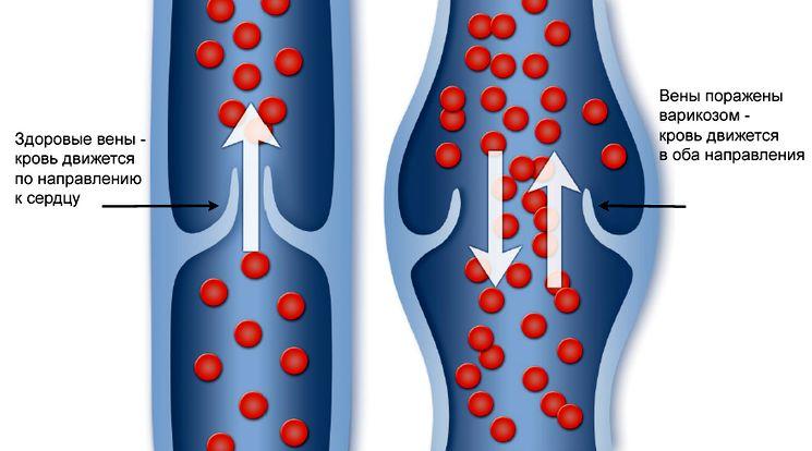 Диагностика и лечение варикоза