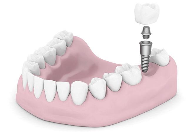 Имплантация зубов. Использование новейших технологий