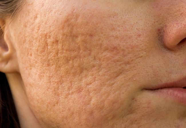 Лазерная косметология. Удаление сосудов на лице лазером