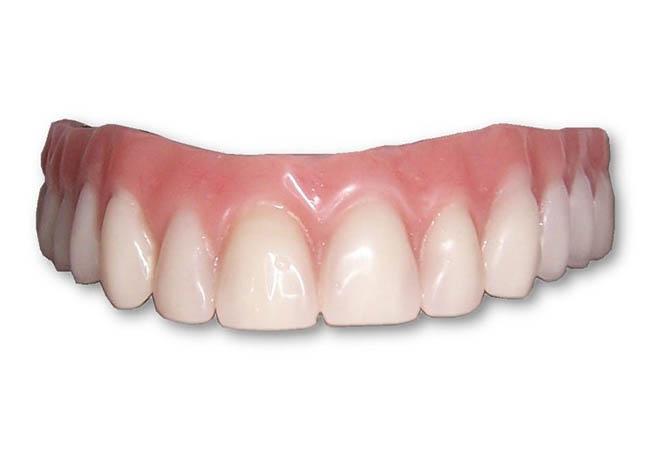 Имплантация зубов в СПб: виды и цены