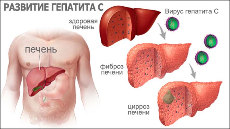 Можно ли ходить в общественные места при гепатите С
