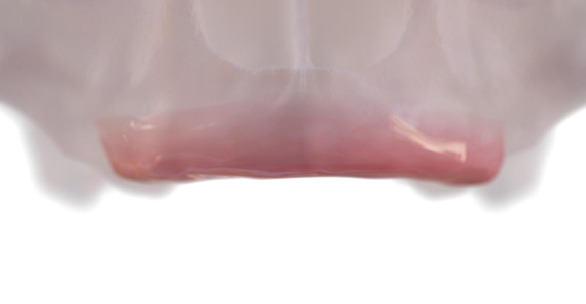 Малоинвазивные методы реабилитации беззубых и потенциально беззубых челюстей