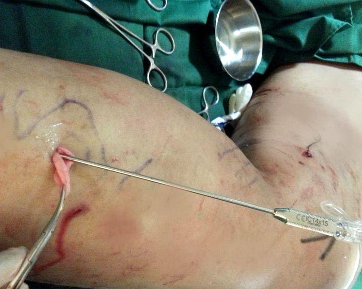 Хирургическое лечение варикоза