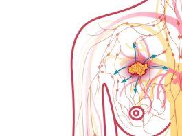 Метастазы при раке молочной и механизм их распространения в мозг