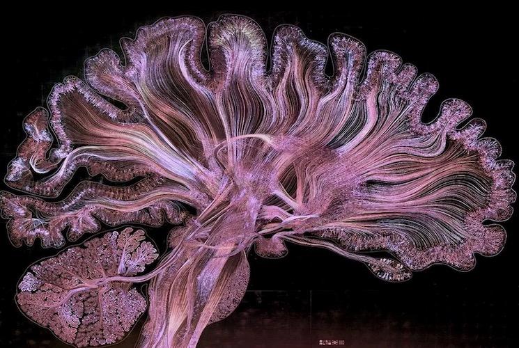 Общий вид головного мозга при микротравлении