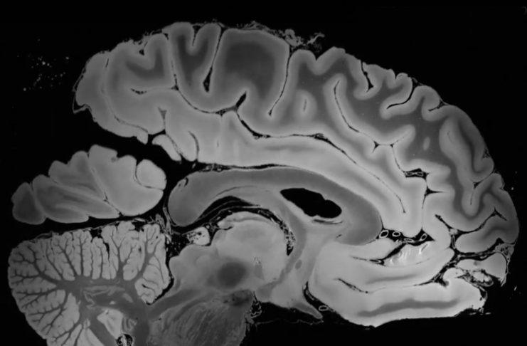 Получен снимок мозга самого высокого разрешения