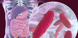 Поражение печени бактериями Klebsiella pneumonia