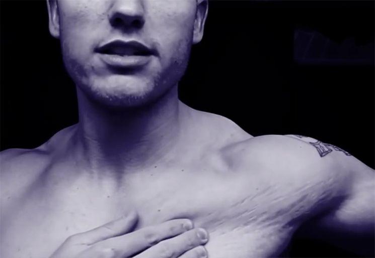 Растяжки на коже плеча