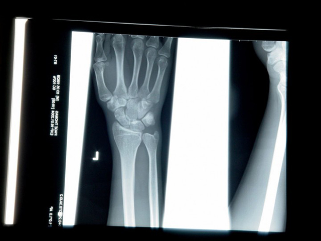 снимок рентгена зараженного вирусом
