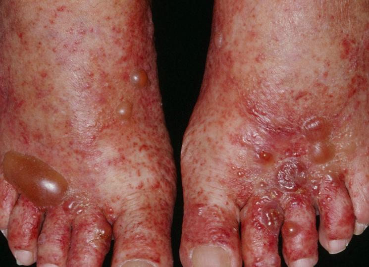 Симптомы вируса коксаки