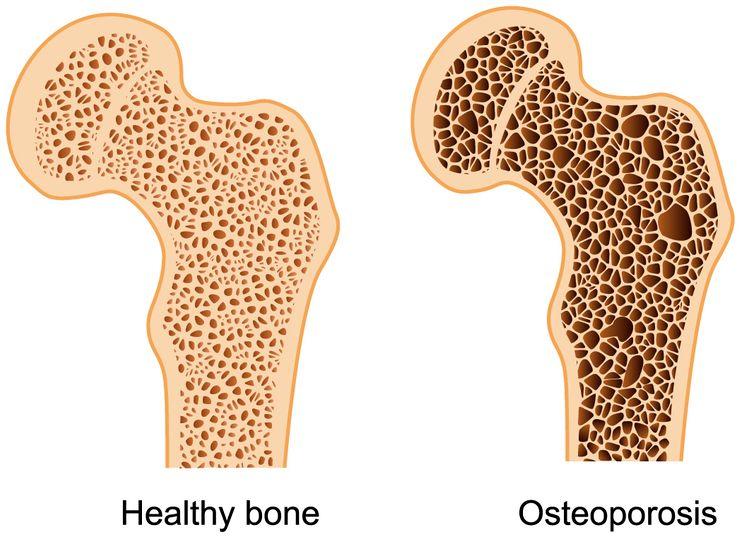 Сравнение - здоровые кости и остеопороз котей