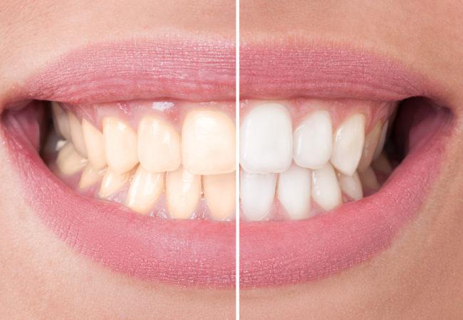 Отбеливание зубов без ослабления зубной эмали