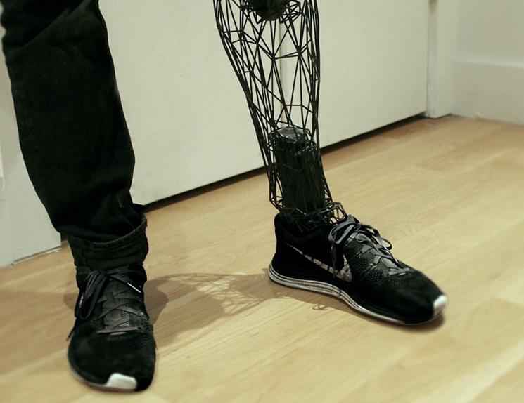 Титановый протез ноги на 3D принтере
