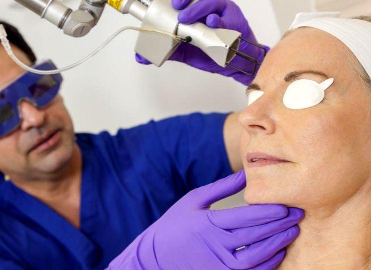 Удаление родинок на лице с помощью лазера