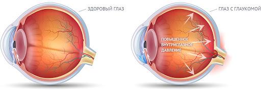 Как лечить глаукому