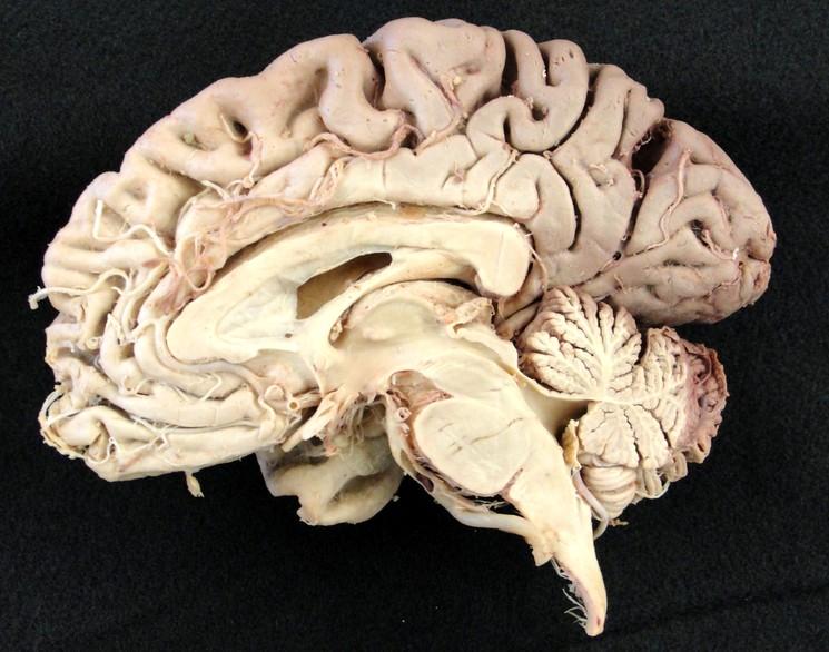 Настоящий человеческий мозг в разрезе