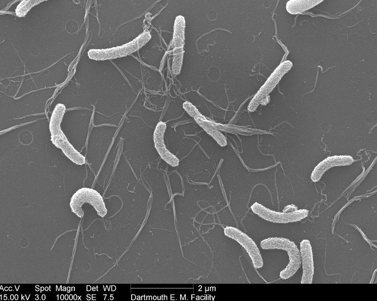 Холерный вибрион Vibrio cholerae под электронным микроскопом