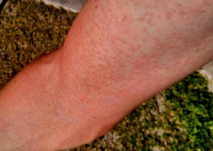 Рука больного вирусом Зика