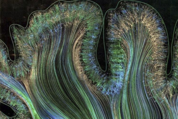 Задняя теменная кора головного мозга